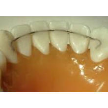 Dental Bonded Lingual Retainers