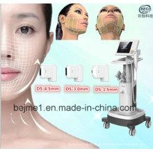 Máquina da beleza de Hifu do elevador da cara de Beco Hifu (FU4.5-2S)