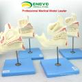 DENTAL22(12604) Huamn Children's Fetus Teeth Development Model with 4 Parts Dental Models