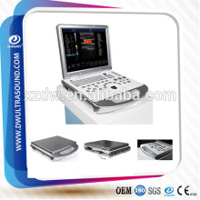 4d ultrasound & ultrasound machine price& laptop color doppler DW-C60PLUS