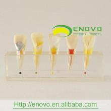 Modelo clínico de la enfermedad de pulpa dental del mejor precio EN-M6 del fabricante directamente
