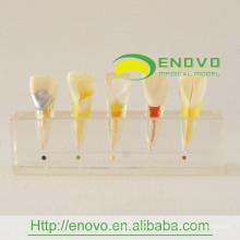 EN-M6 Best Price Dental Pulp Disease Clinical Model from Manufacturer Directly