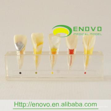 EN-M6 Melhor Preço Modelo Clínico da Doença da Polpa Dentária do Fabricante Diretamente