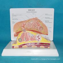 Высококачественная патологическая женская анатомическая медицинская модель груди (R150105)