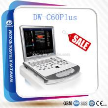 Échographie doppler de couleur économique de DW-C60 et doppler couleur d'ordinateur portable
