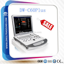 DW-C60 economical color doppler ultrasound & laptop color doppler