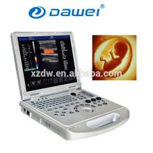 color del ultrasonido del doppler del ultrasonido del ordenador portátil y precio del ordenador portátil del ultrasonido del color