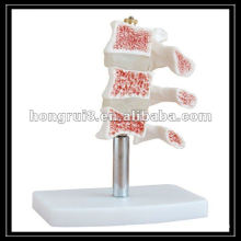 ISO Osteoporosis Model,cut lumbar vertebrae model, spinal column joint skeleton HR-134