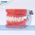 ZAHNMEDIZINISCHES 13001 Standard-zahnmedizinische Zahn-Modelle mit 28pcs entfernbaren Zähnen behoben durch Wachs
