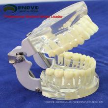 DENTAL12 (12572) Transparentes Kiefermodell mit Zähnen zum Selbstbürsten von Educaion