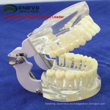 DENTAL12 (12572) Modelo de mandíbula transparente con dientes para auto cepillarse Educaion
