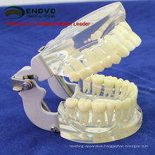 DENTAL12(12572) Transparent Jaw Model with Teeth for Self Brushing Educaion