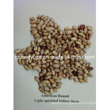 Light Speckled Kindney  American Round Shape Bean