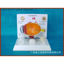 Pathological Model Disease Eye Anatomical Model