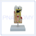 PNT-0542 modèle de soins des dents humaines