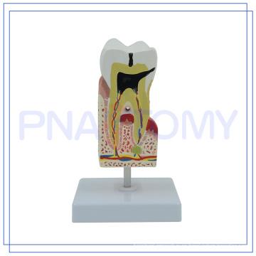 PNT-0542 modelo de cuidado de los dientes humanos