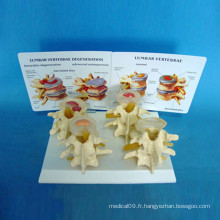 Modèle médical d'squelette osseux humain pour l'enseignement de la biologie (R020701)