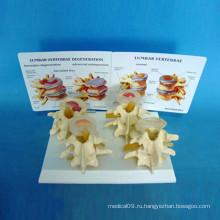 Медицинская скелетная модель костного мозга для преподавания биологии (R020701)