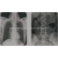 (MSLDR04A) Krankenhausausrüstung Röntgengerät für Veterinär- / Röntgengerätpreise