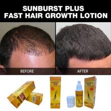 Новое обновление 100% натуральные продукты для роста волос Sunburst Plus Лосьон для роста волос 100 мл для быстрого противодействия выпадению волос