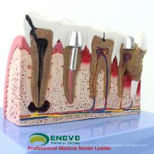 DENTAL35 (12625-1) modelos médicos didáticos da anatomia do implante dental do tamanho grande