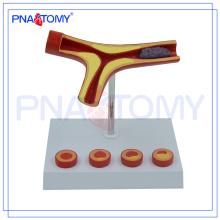 PNT-0725 Arteriosclerosis modelo de arteria Bloqueo