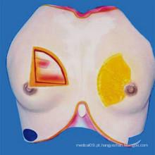 Modelo feminino de anatomia médica do seio para demonstração (R150103)