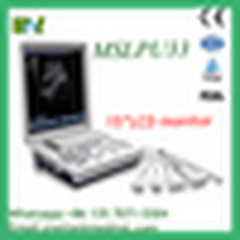 MSLPU33M Portable Notebook Laptop Ultrasound machine Scanner system Digital convex probe