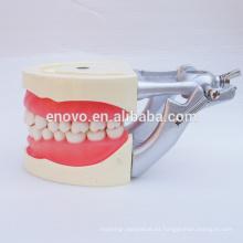 Modelo de enseñanza dental de encías blandas para preparación de los dientes 13010