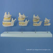 Processo de crescimento do dente humano Modelo de anatomia para o ensino (R080102)