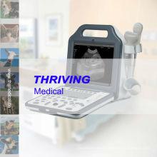 Digital Veterinary Portable Ultrasonic Diagnositc Device