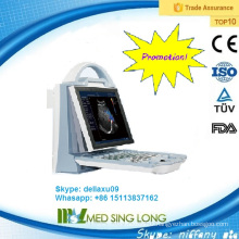 Promotion!!! portable color doppler ultrasound system/ ultrasound machine portable (MSLCU23A)