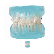 Orthodontic Model with Blue Transparent Jaw