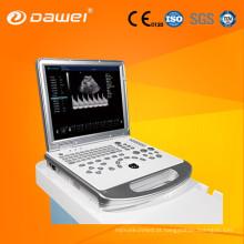 ultra-som do portátil do preço & ultra-som do portátil do preço no estoque