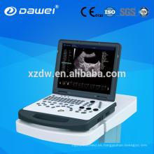 Doppler portátil máquina de ultrasonido y portátil color Doppler escáner de ultrasonido