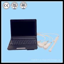 (MSLPU03) La mejor fluoroscopia portable del doppler del color 2d 3d b escanear la máquina de la máquina del ultrasonido