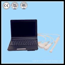 (MSLPU03) La meilleure fluoroscopie portable doppler couleur 2d 3d b scan ultrasons machine fabrication