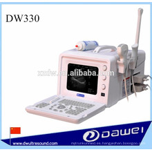 máquina de ecografía y ultrasonido veterinaria para anales DW330