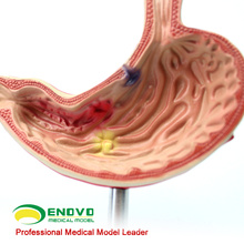 STOMACH01 (12534) Metade Do Tamanho Doente Humano Estômago Medical Science Anatomical Stomach Model