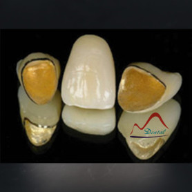 PFM Precious Captek Crown and Bridge