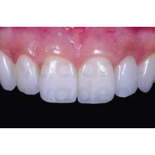 No Allergies Lithium Disilicate Glass Ceramic Ips E.max Press Of Zirconium Oxide Dental