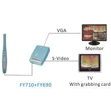 Стоматологическая камера для стоматологической камеры VGA