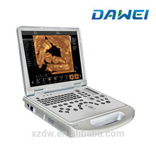 Tragbarer Ultraschall-Farbdoppler-Laptop 4d Doppler-Ultraschall