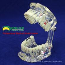 DENTAL08 (12567) Restauração de modelos de dentes de doença de implante dentário transparente