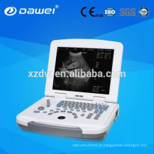 Full-Digital 96 elemento convexo laptop ultra-sônica máquina de diagnóstico e laptop ultra-sônico DW-500