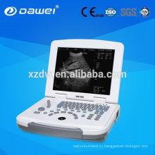 Полн-цифровой 96 элементов выпуклый ноутбук ультразвуковой диагностики машина ультразвука компьтер-книжки ДГ-500