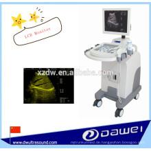Volldigitaler Trolley Ultraschall Scanner zum Verkauf
