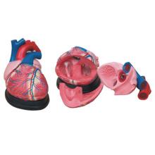 Simulation de modèle de coeur élargi Éducation médicale