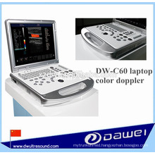 ecografo portatil&veterinary ultrasound equipment DW-C60PLUS