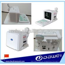 máquina de ultra-som portátil para grávidas e ultrassom scanner portátil
